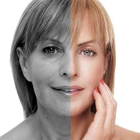 laser skin resurfacing Poole
