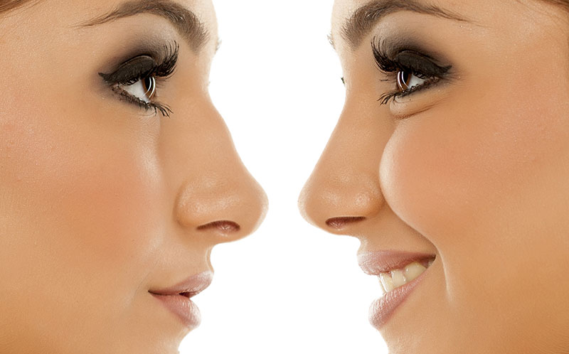4 ways to transform your nose without a rhinoplasty