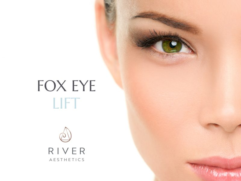 fox eye lift by river aesthetics