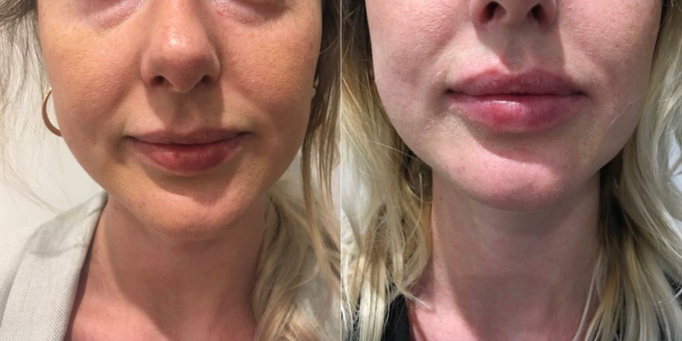 River Lip Experience at River Aesthetics